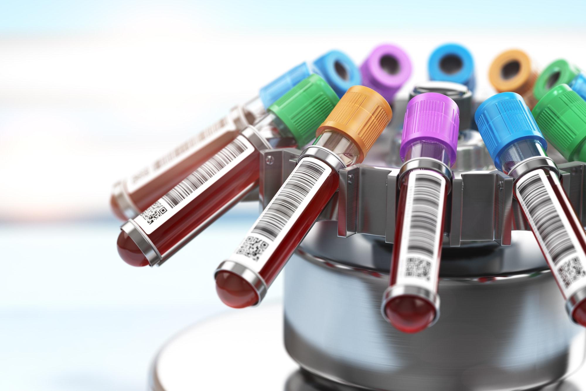Blood test tubes in centrifuge. Plasma preparation in medical h